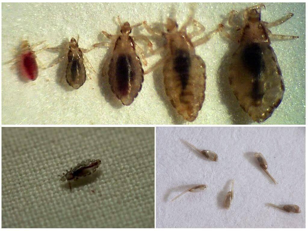 Как избавиться от гнид? в домашних условиях лечим педикулез как избавиться от гнид? в домашних условиях лечим педикулез