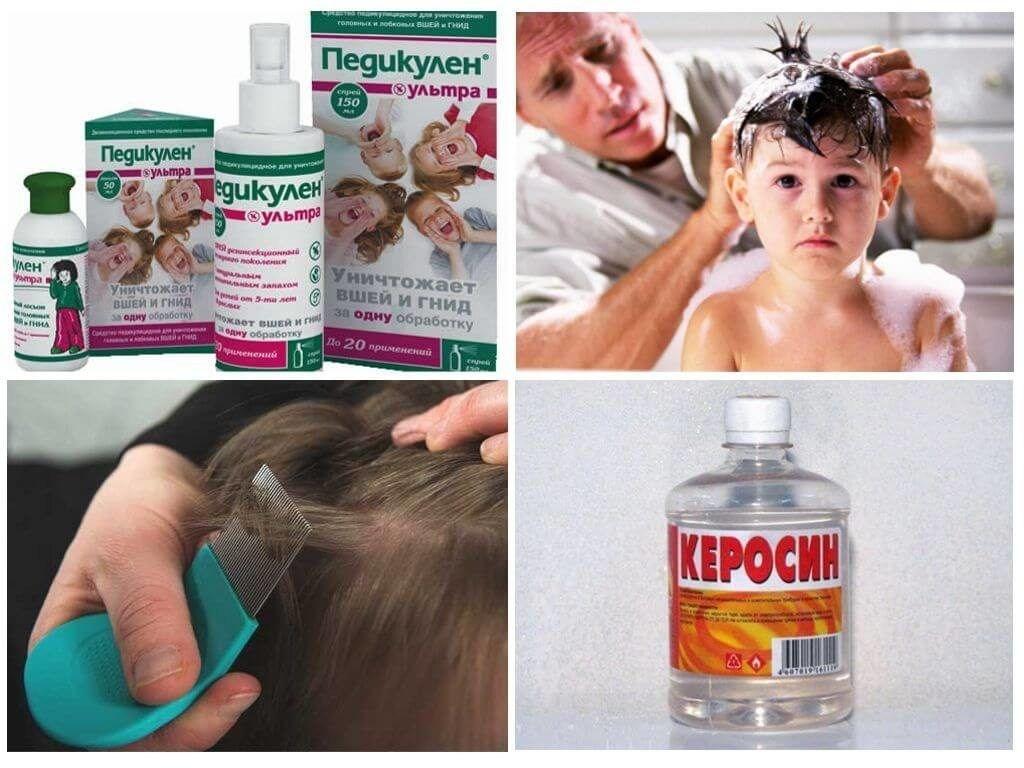 Лечение педикулеза у детей в домашних условиях: препараты и народные средства