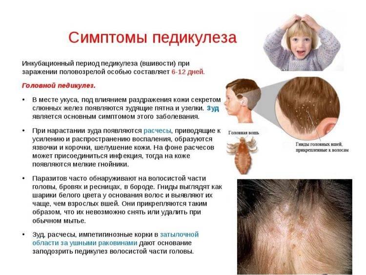 Как выводить керосином вшей и гнид: инструкция по применению народного метода