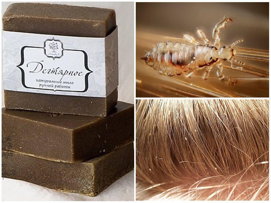 Как использовать дегтярное, хозяйственное и дустовое мыло от вшей?