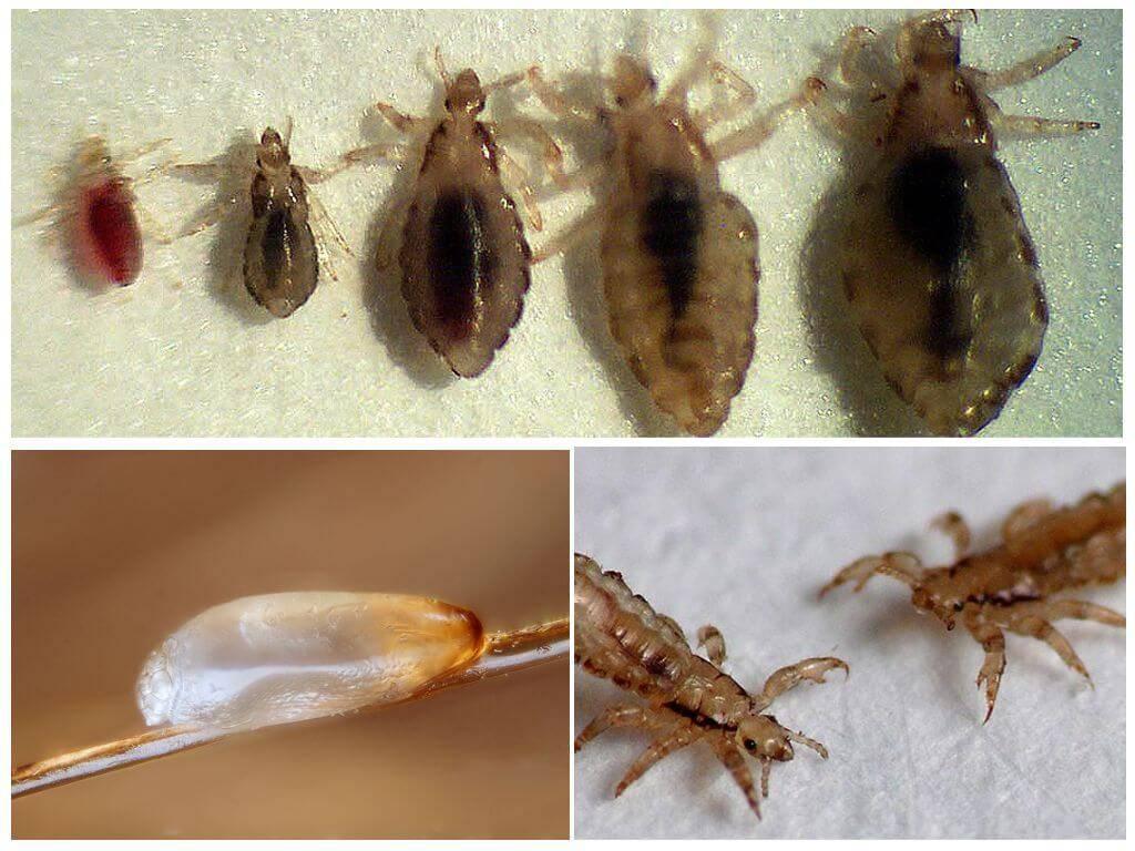 Как быстро размножаются вши: инкубационный период гнид, где живут