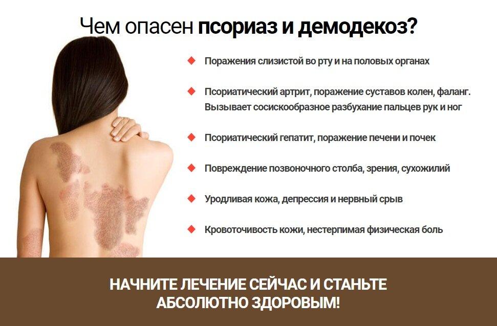 Официальная и народная медицина в лечении демодекоза лица, век и волосистой части головы