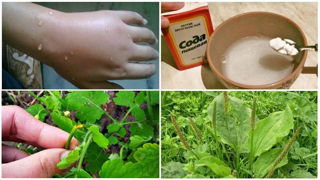 Укус комара и других кровососущих насекомых. как убрать зуд, покраснение и опухоль? как избавиться от оставшихся на коже пятен. - здоровье прежде всего!