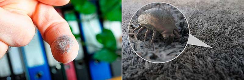 Чем опасен пылевой клещ и как его вывести?
