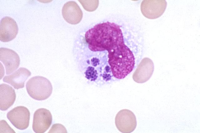 Моноцитарный эрлихиоз: моноцитарный эрлихиоз | медицинский справочник
