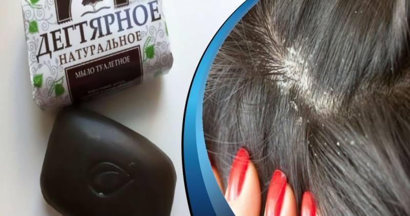 Помощь дегтярного мыла в уничтожении вшей