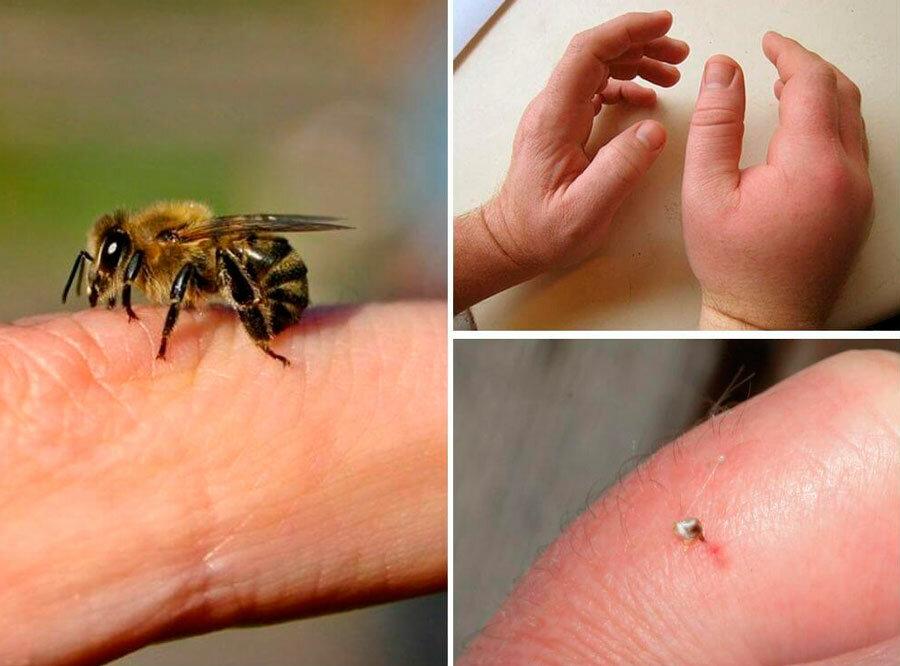 Первая помощь и лечение укуса пчелы: советы и рекомендации