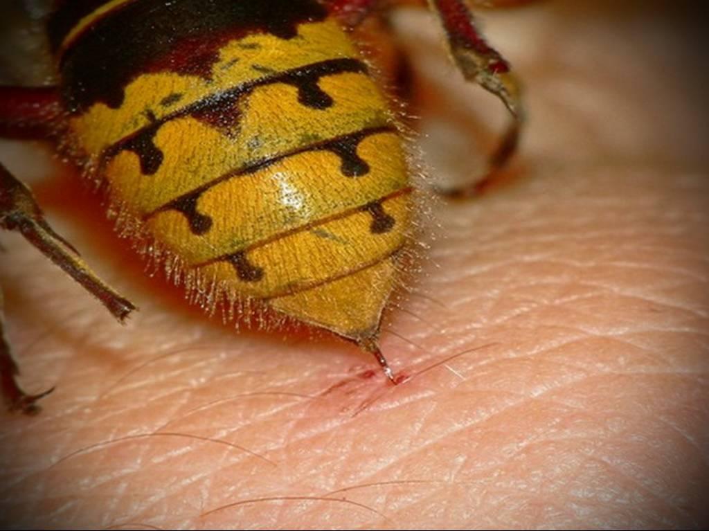 Первая помощь при укусе пчелы: почему она умирает, как снять отек, а также польза и последствия