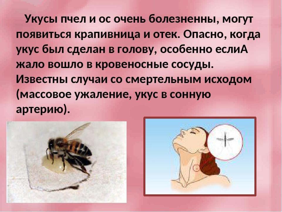 Укус пчелы, осы, что делать? первая помощь при укусе пчелы, осы, шершня. :: polismed.com