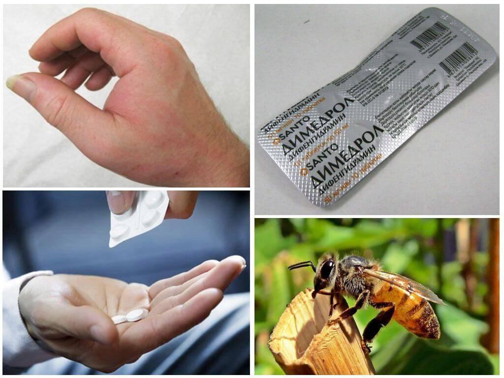 Особенности укуса пчелы: что делать, первая помощь и лечение последствий