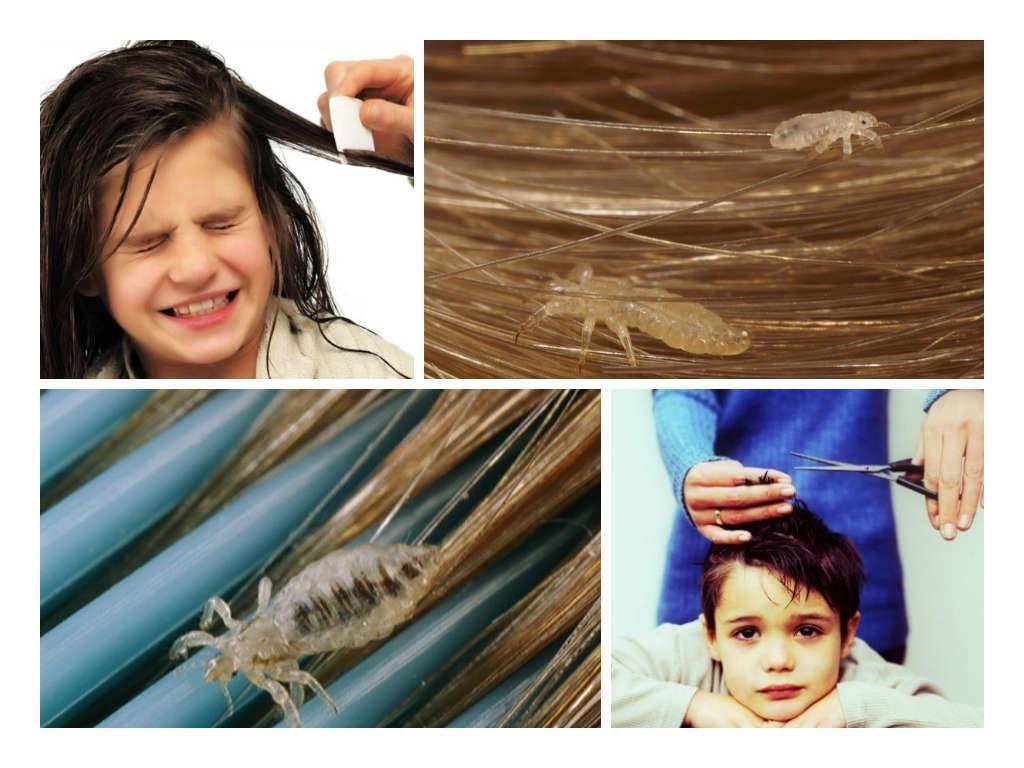 Педикулез у детей: симптомы, причины, лечение от вшей и гнид в домашних условиях