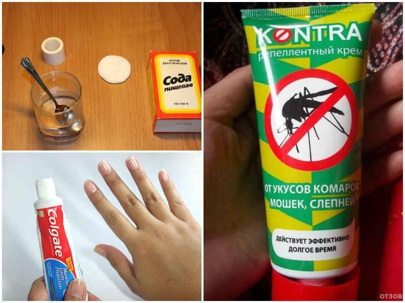 Что делать и как снять опухоль и покраснение от укусов комаров