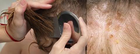При какой температуре погибают гниды, можно ли убить их утюжком и краской для волос?