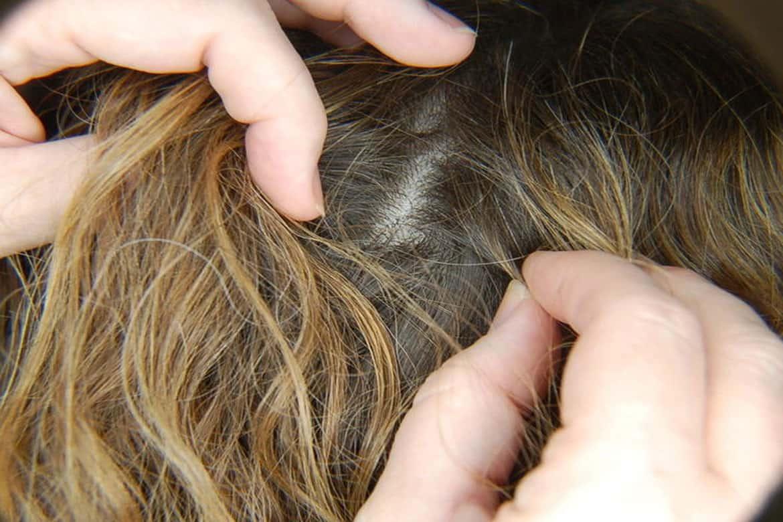 Убивает ли краска для волос вшей и гнид: можно ли вывести паразитов, покрасив голову?