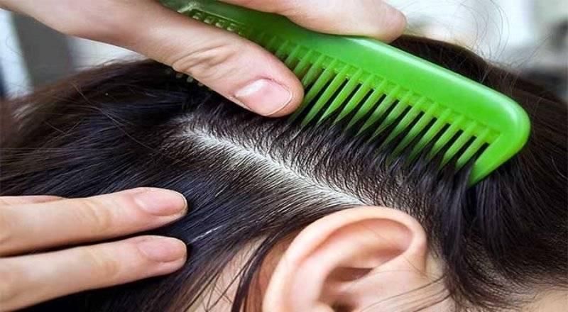 Гниды и вши на волосах