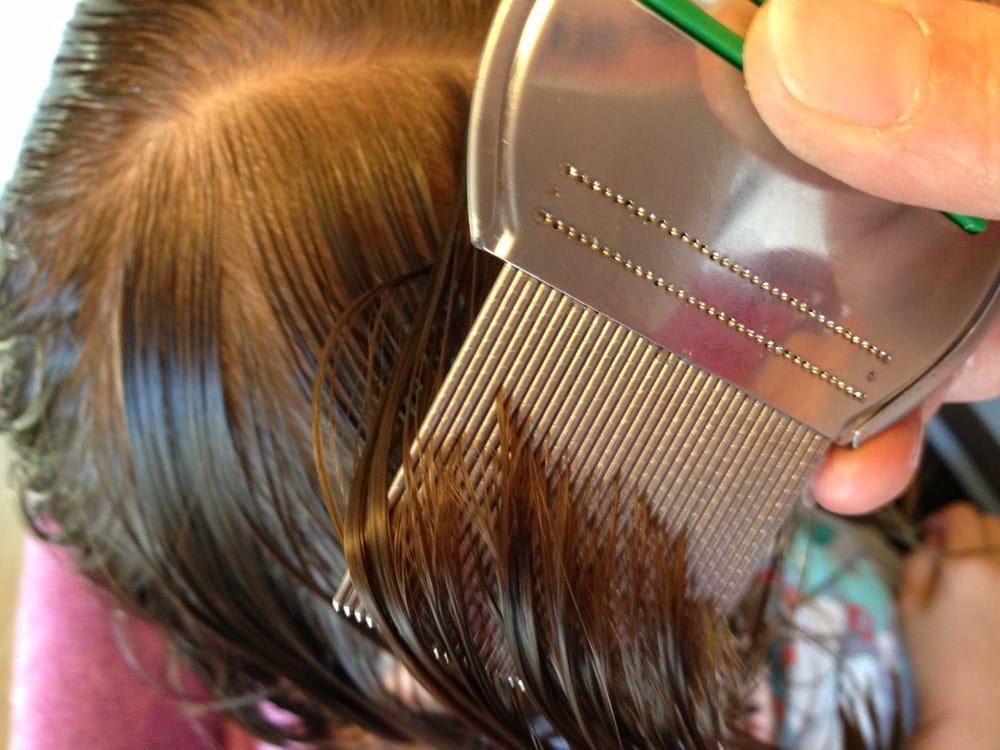 Как вычесывать вшей и гнид правильно: подробная инструкция и обзор гребешков