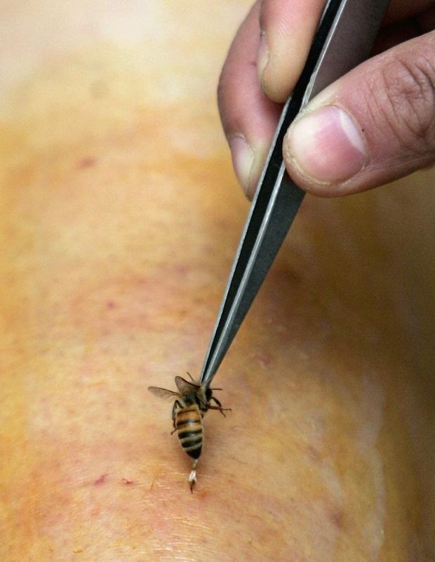 Как кусает оса: умирает ли после укуса и оставляет жало или нет, как вытащить его