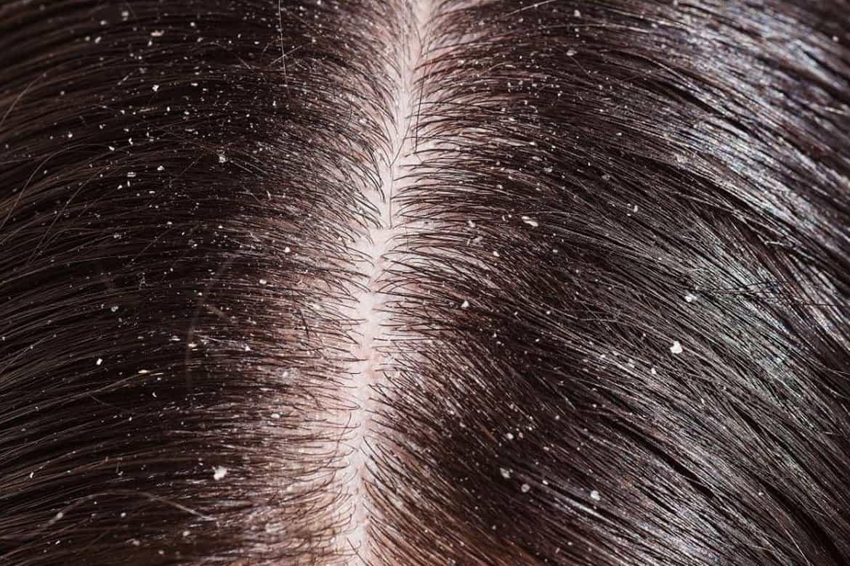 Как отличить перхоть от гнид на волосах – методы, позволяющие не путать гнид с перхотью | rvdku.ru