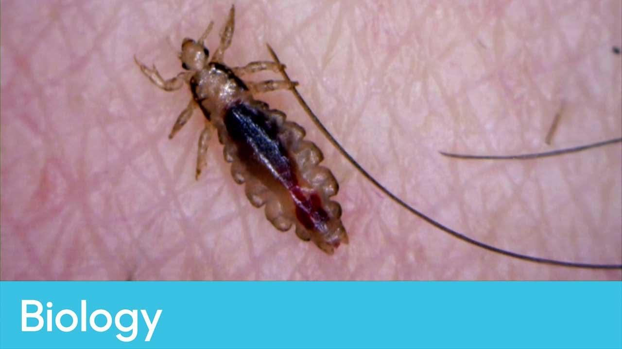 Лосиная вошь: особенности размножения, опасность для человека