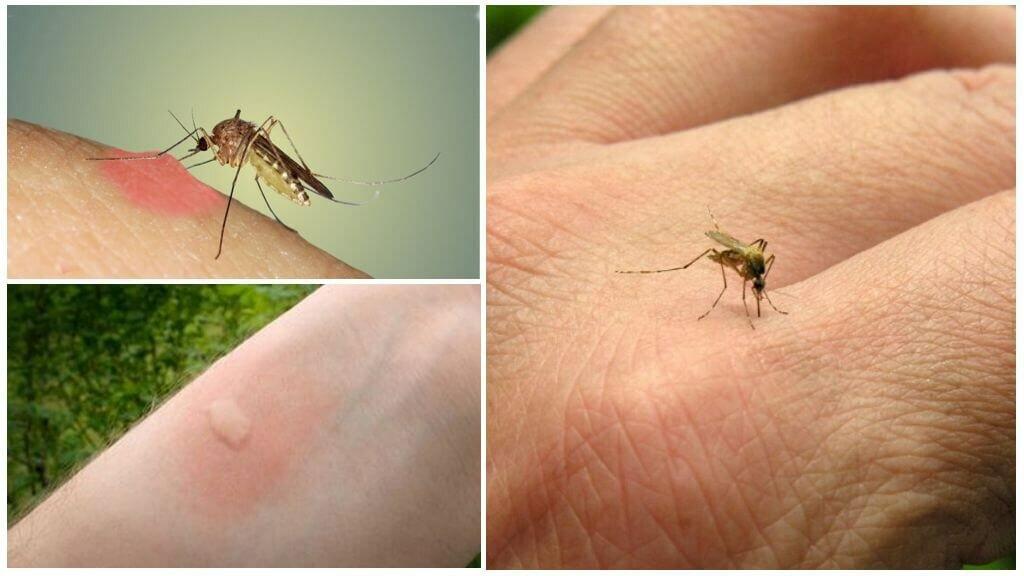 Как видят комары и что их привлекает к человеку. как видят комары и что их привлекает к человеку как видят комары