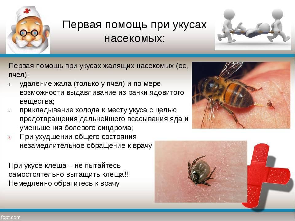 Укус пчелы: симптомы, первая помощь, польза, вред и последствия
