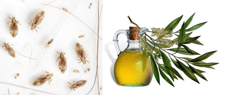 Поможет ли подсолнечное или эфирное масло вывести вшей и гнид?