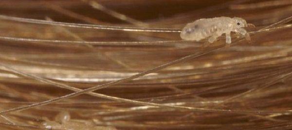 Вшивость от нервов – миф или правда