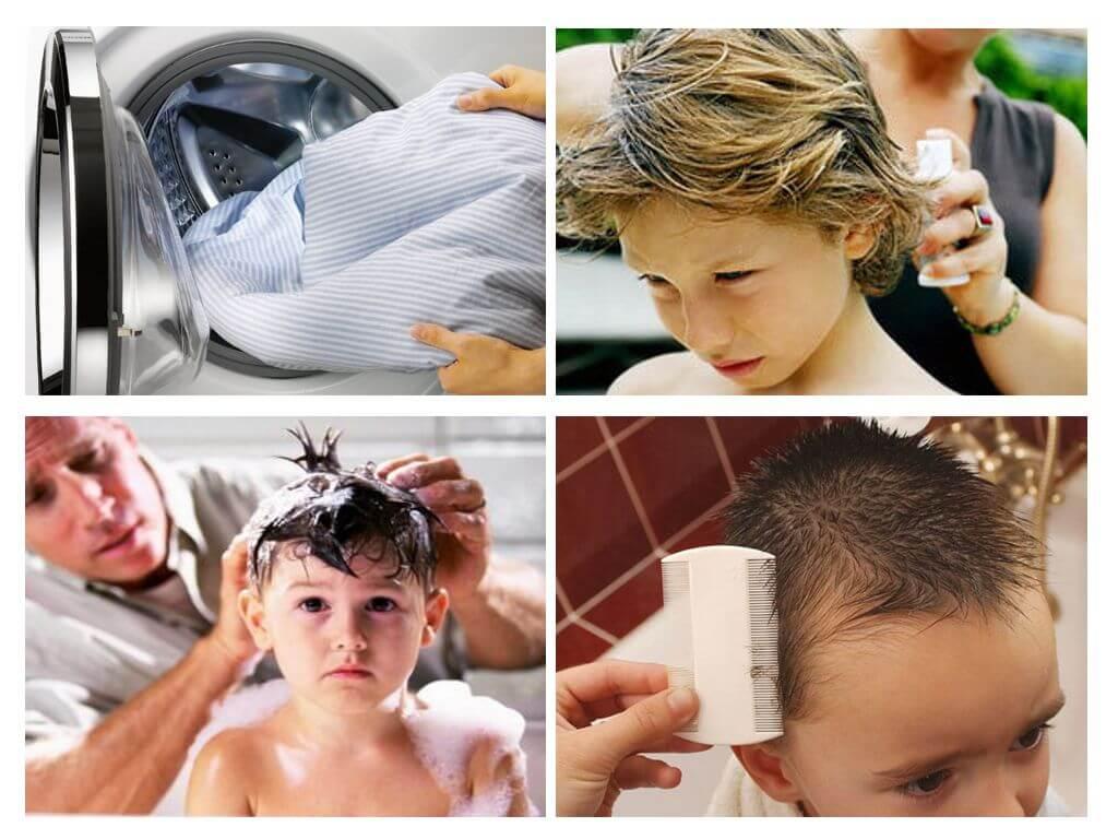 Что делать, если у ребенка вши и гниды: признаки, откуда берутся и как их быстро вывести, эффективное лечение педикулеза препаратами и народными средствами