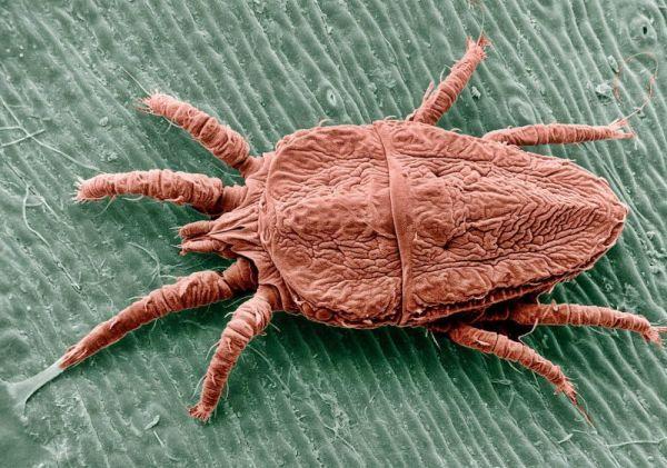 При какой температуре погибает чесоточный клещ — сайт о борьбе с паразитами