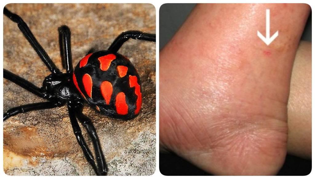 Что делать при укусе крымского тарантула