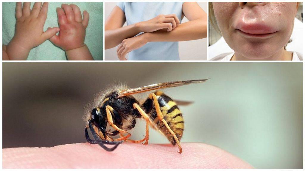 Что делать, если укусила оса. как оказать первую помощь при укусе осы в домашних условиях