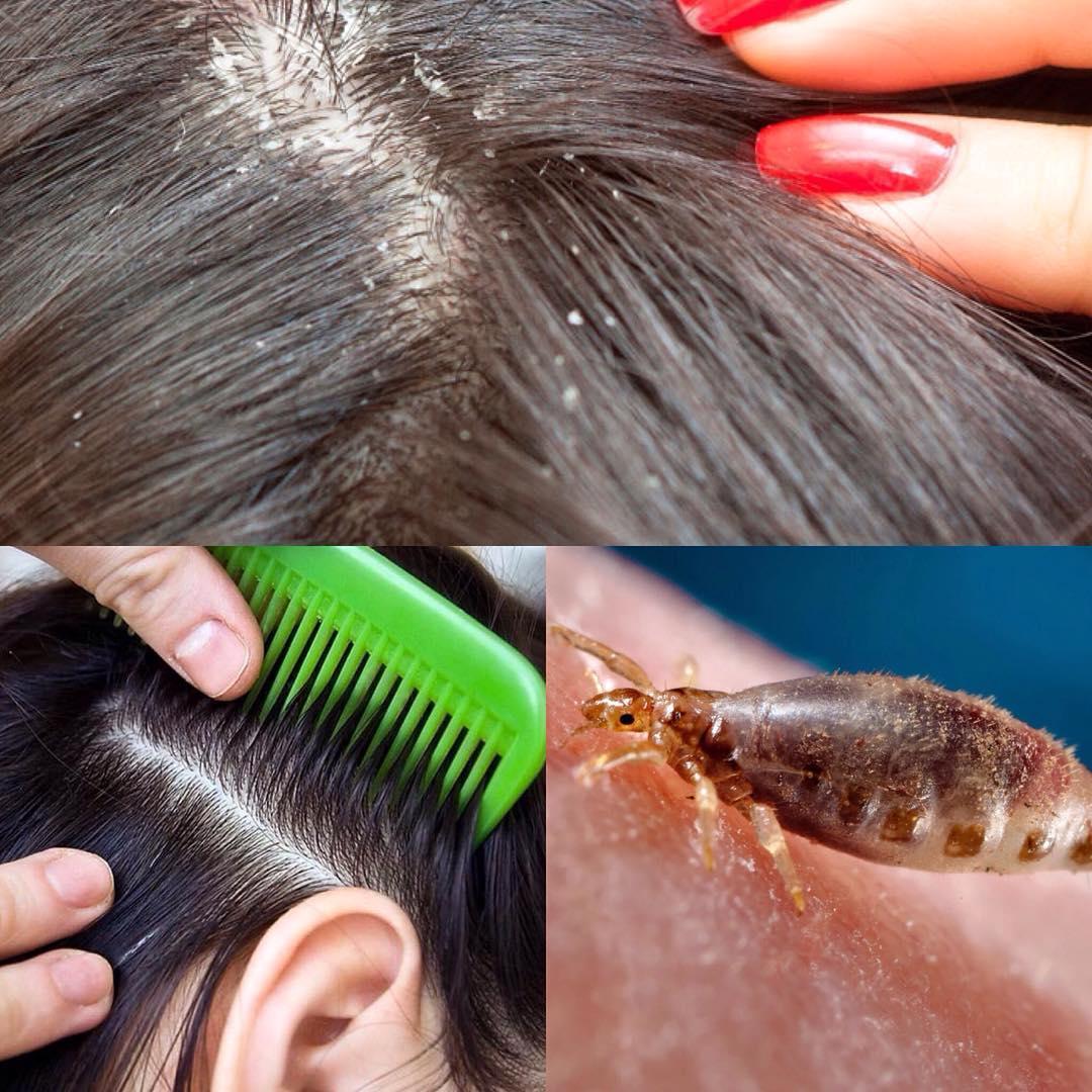 Могут ли вши жить на окрашенных волосах?
