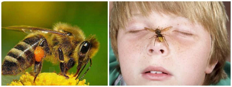 Чем лечить укусы насекомых у детей, полезные советы