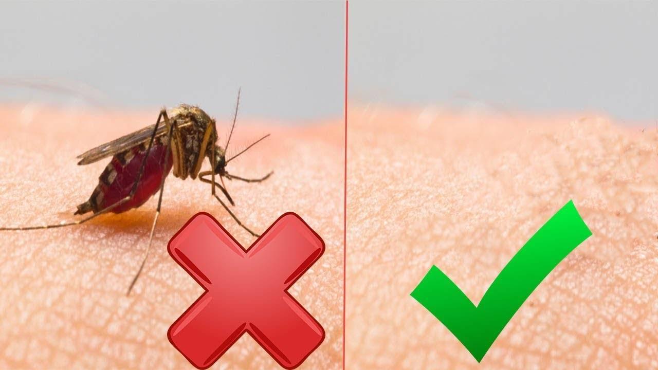 Почему укусы комаров чешутся и опухают - основные причины и патологические симптомы у детей или взрослых