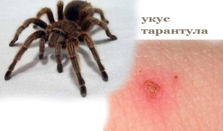 Укус тарантула для человека, что будет если укусил, смертельно ли?