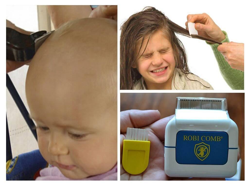 Вши в волосах у ребенка: что делать, как избавиться в домашних условиях