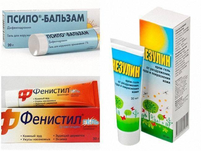 Чем мазать укусы комаров? народные и медицинские средства, чтобы минимизировать последствия укуса комаров и уменьшить зуд