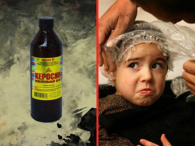Как использовать керосин от вшей и гнид?