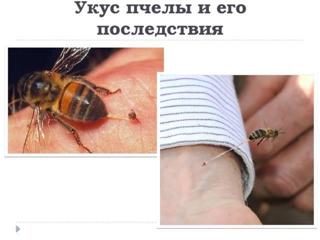 Если укусила оса. первая помощь при укусе осы, пчелы, шмеля или шершня