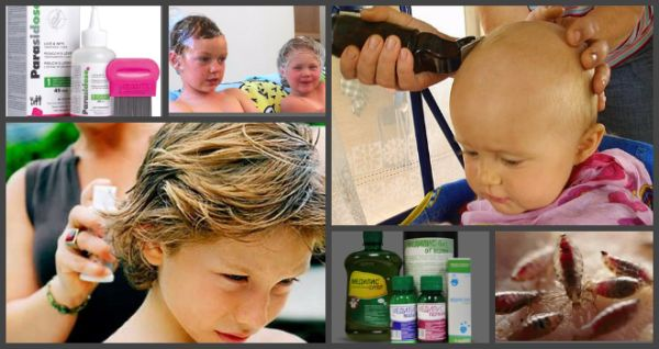 У ребенка завелись вши: как распознать, лечение покупными и народными средствами, профилактика