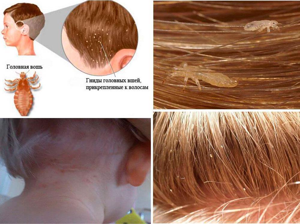 Топ 10 причин зуда кожи головы: лечение в домашних условиях, как избавиться от зуда за 1 день