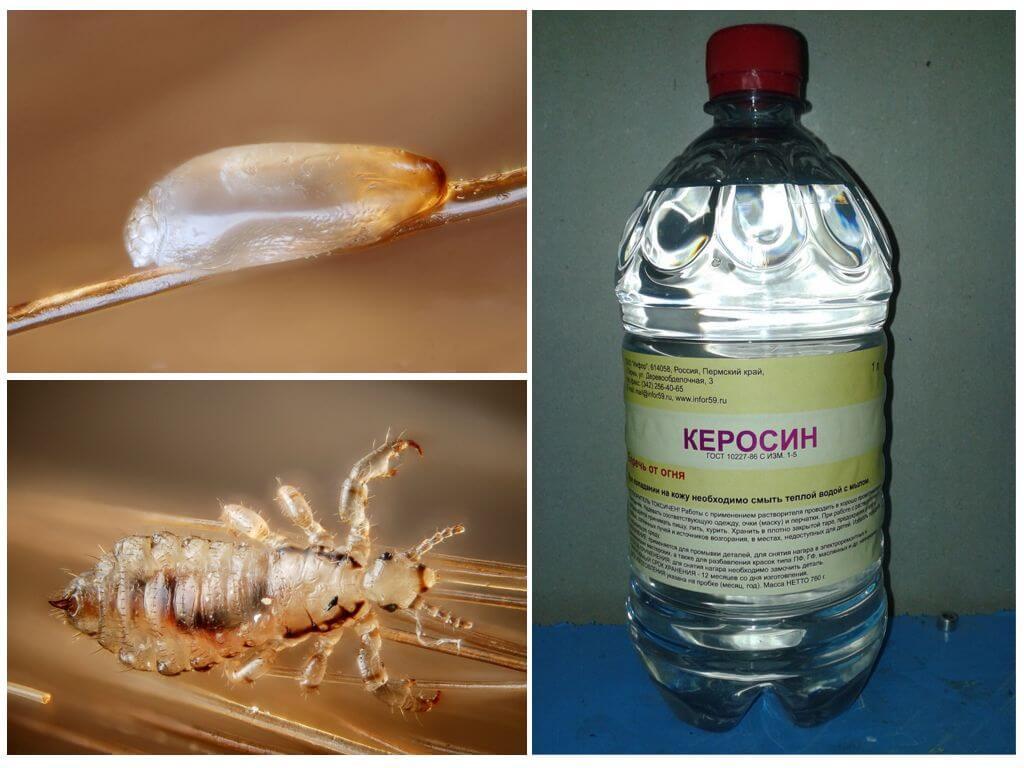 Как вывести вшей керосином и помогает ли он избавиться от гнид