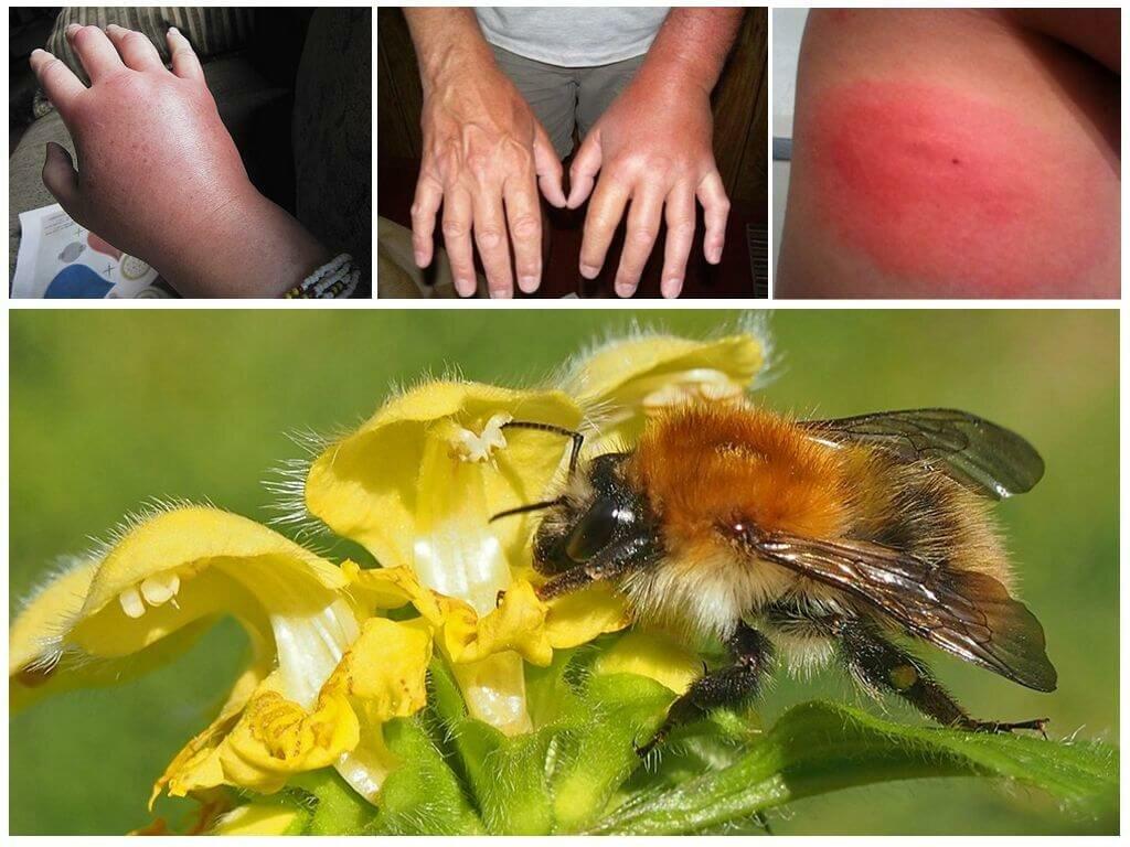 Может ли ужалить мертвая пчела. пчелы и осы – кто умирает после укусов