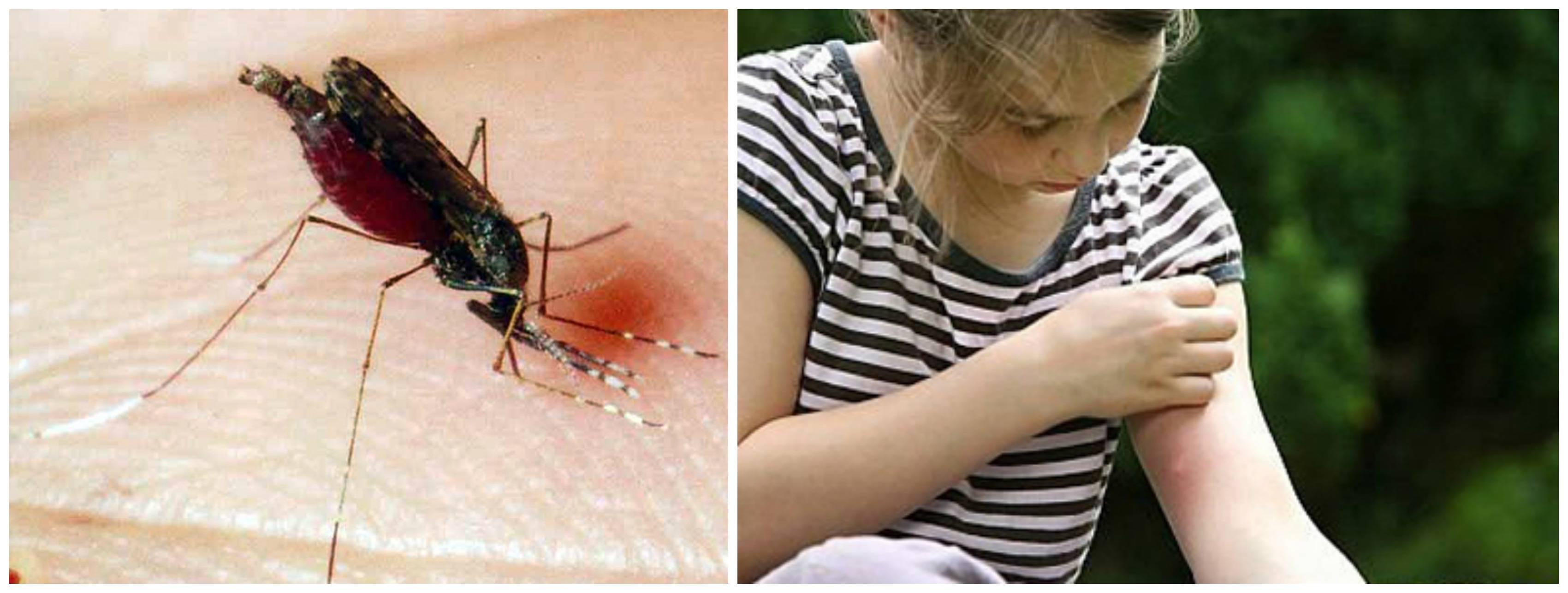 Реакция на укусы насекомых у детей: как лечить и предотвратить    yamama
