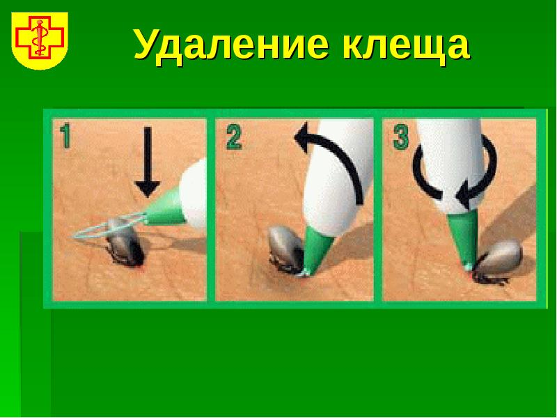 3 способа, как вытащить клеща дома у человека: выкручиванием, с помощью нитки, шприцом