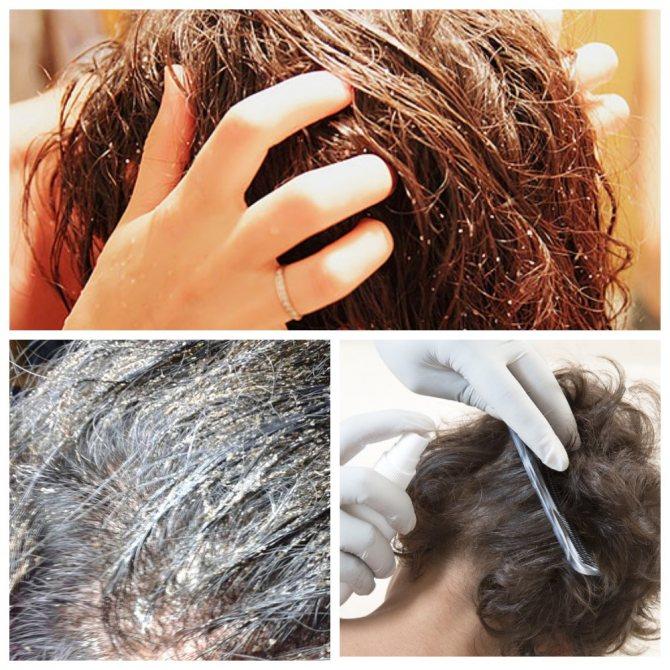 Лак прелесть от вшей и гнид для волос: как вывести с его помощью?