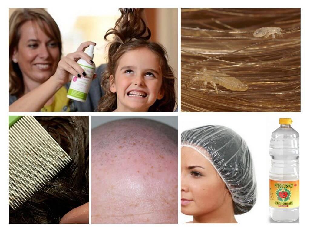 Вши на окрашенных волосах: какие препараты и народные средства можно применять?