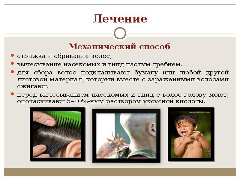 Вши в волосах: как появляются головные насекомые, как лечить педикулез и фото под микроскопом