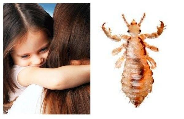Педикулез – поражение кожи человека, которое вызвано паразитами – вшами.