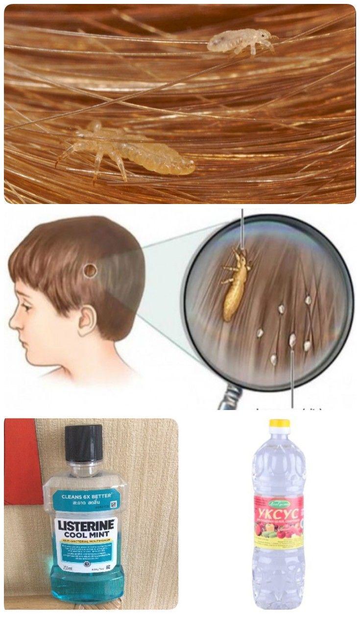 Меры профилактики вшей у детей в домашних условиях: аэрозоли, шампуни и народные методики